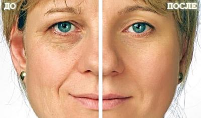 коррекция носослезной борозды фото до и после
