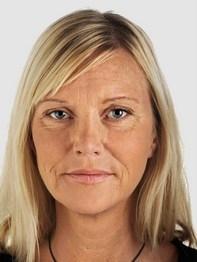 Лица мезотерапия лица цена