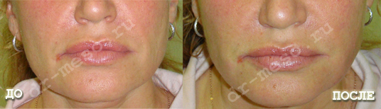 мезонити до и после фото отзывы